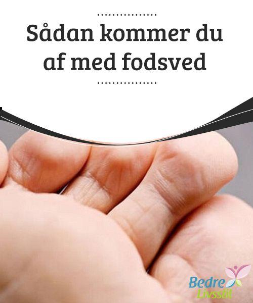 Sådan kommer du af med #fodsved  Fodsved er et problem, som de fleste #danskere på et eller andet tidspunkt i løbet af deres liv har #oplevet. Det kan skyldes dårlig hygiejne, bakterier eller svamp, #dårligt fodtøj, fugt og selv stress. Det kan være både et pinligt og et ubehageligt #problem.