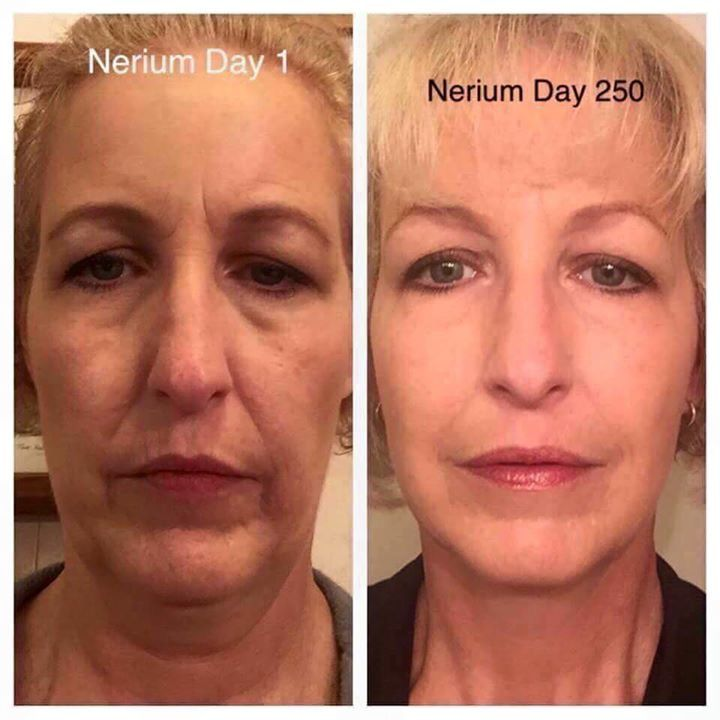 Look at that Nerium Glow! Eyes, face, and neck LIFTED! Order at lindagranstrom.nerium.com