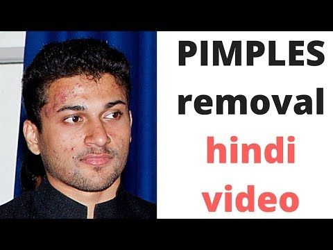 HINDI how to cure pimples for men