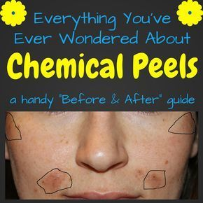 Jessner Chemical Peel Before and After Photos