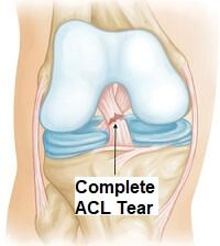 An ACL tear or rupture is a serious injury of the knee. FInd out about the causes, symptoms, diagnosis and treatment options