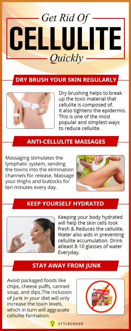 get rid of cellulite quickly 02