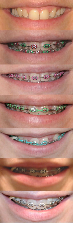 Pin By Tremblay Karolann On Braces Color Ideas Dental