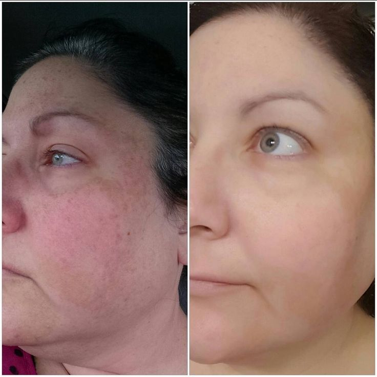 One Year results with Rodan and Fields. Reverse, Accelerator pack, Redefine, AMP Roller, eye cream and Macro- So worth it.