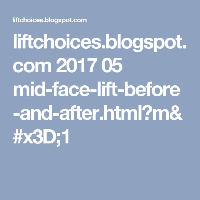 liftchoices.blogspot.com 2017 05 mid-face-lift-before-and-after.html?m=1