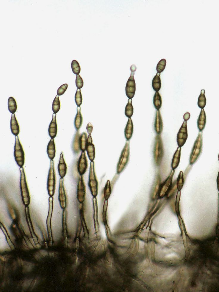 Alternaria_alternata_spore_chains.jpg (Obraz JPEG, 900×1200 pikseli)
