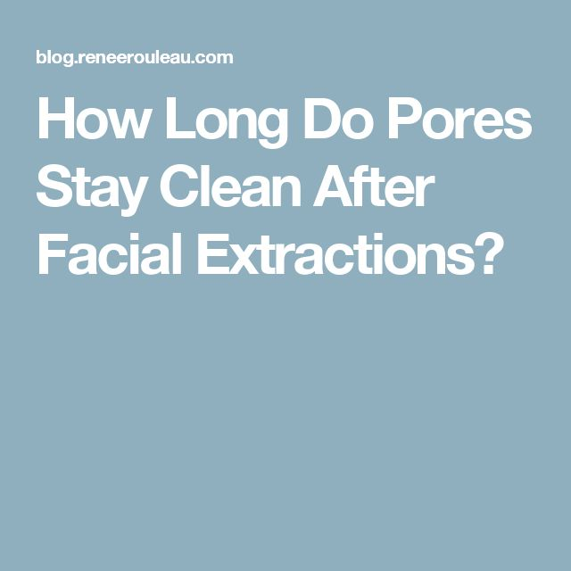 How Long Do Pores Stay Clean After Facial Extractions?