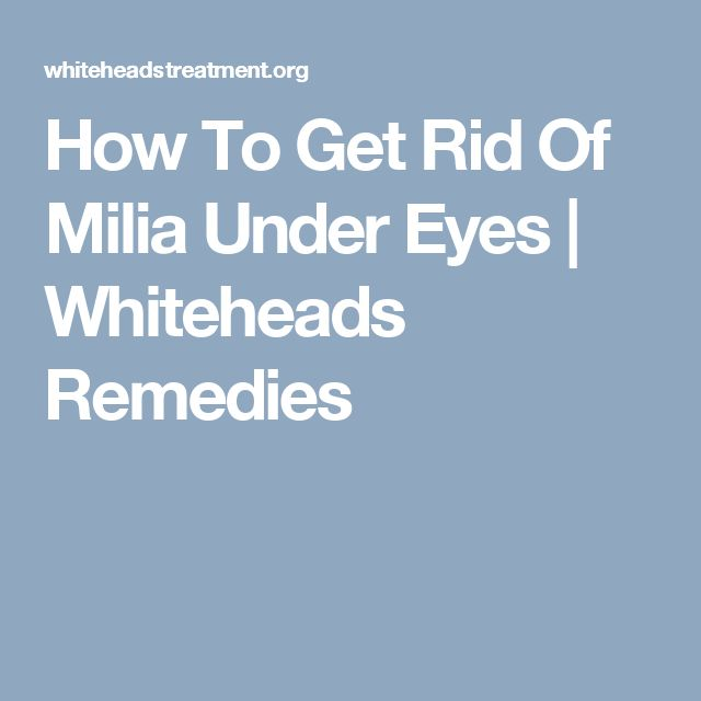 How To Get Rid Of Milia Under Eyes | Whiteheads Remedies