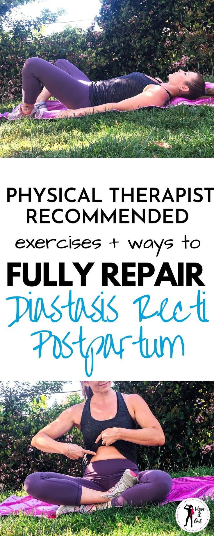 A Physical Therapist Explains how to Prevent and Repair Diastasis Recti – Jennifer Hooper
