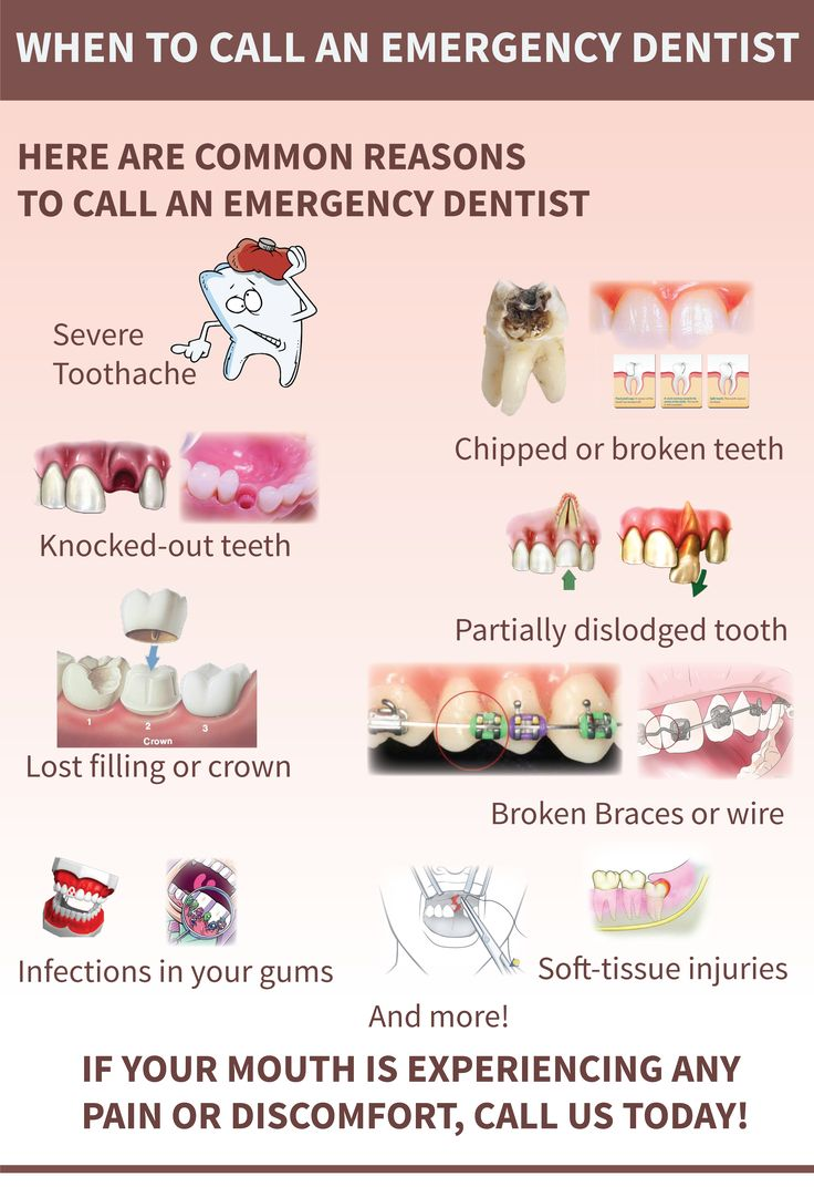best 25 emergency dentist ideas on pinterest dental emergency