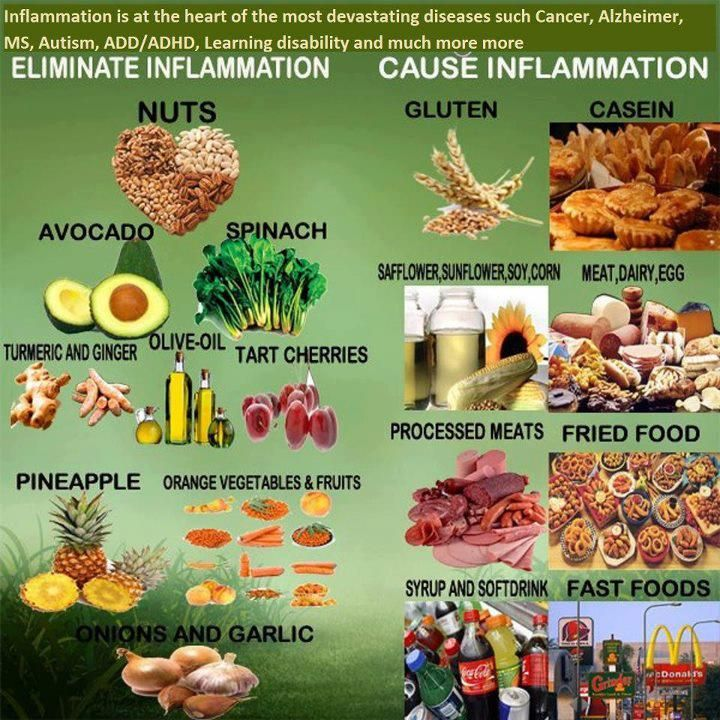 Best Foods To Eat To Reduce Inflammation