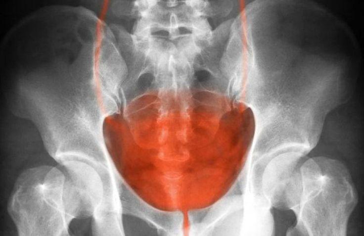 Όλες οι αιτίες για τον καρκίνο της ουροδόχου κύστεως