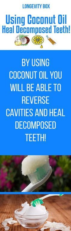 Heal decomposed teeth with coconut oil