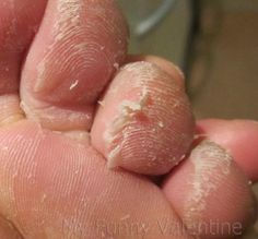DIY foot peel. Disgusting picture, I know, but you looked!! Approx 1 week after…