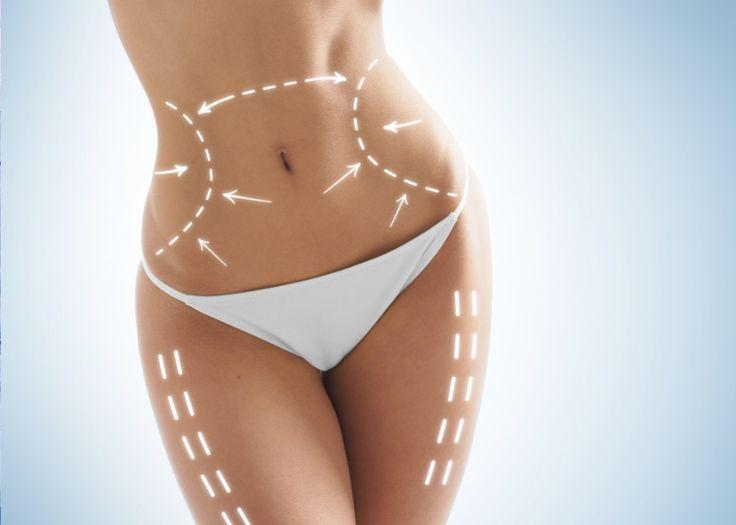 Lipolaser o Laser Lipólisis ¡elimina la grasa localizada sin cirugía!