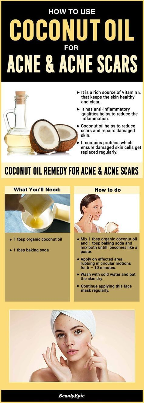 How to Use Coconut Oil for Acne and Acne Scars?