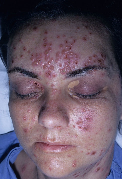 are you vaccinated for shingles disease - Google Search