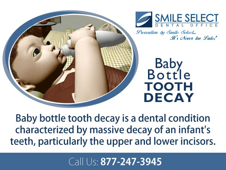 Baby Bottle Tooth Decay: