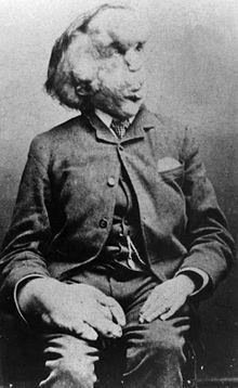 August 5th, 1863: Joseph Merrick born