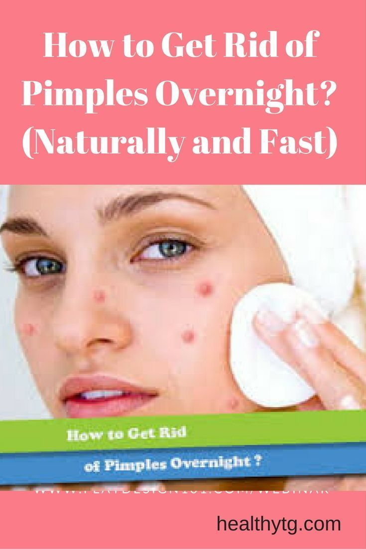 how to get rid of whiteheads overnight naturally