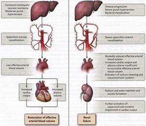 Hepatorenal Syndrome is a medical condition in which kidney disease and cirrhosis of the liver happens in same person.