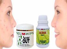 Azufre & ácido salicílico Acné Manchas Eliminación de Rostro Crema + Loción todo natural 50+50ml