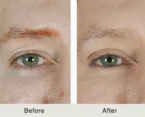 An eye lift can be performed on the upper lid, lower lid or both lids.   Eyes that are open and bright display an appearance of health, alertness, and youth.  As we age, the eyes can become heavy and develop bags underneath them.  These changes can create a look of aging, fatigue, and sadness.  An eyelift is an outpatient surgery that is a great option for patients looking to restore the youthful appearance of their eyes.  Find out more about eye lift surgery here! | Carolina Facial Plastics