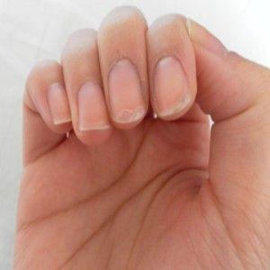 Top Home Remedies For Peeling Fingernails