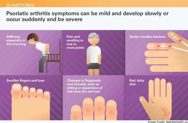 arthritis psoriatica labor