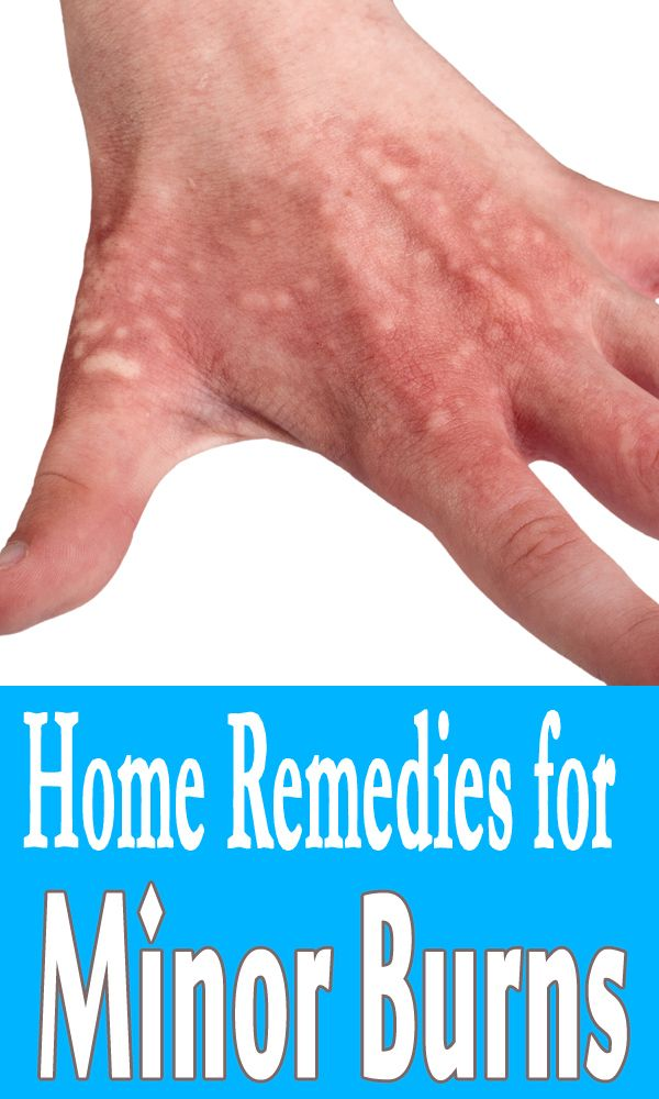 Natural Remedies For Minor Burns