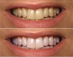 #topdentalclinicsinpunjab #dentistservicesjalandhar #bestdentalcareinJalandhar #topdentalclinicsinindia #dentaltreatmentindia #dentistservicesjalandhar #dentalcareindia www.drguptasdentalcareindia.com Cont:91-9023444802