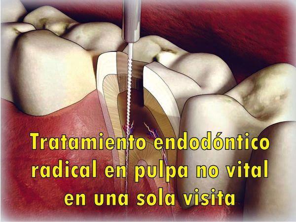 PDF: Tratamiento endodóntico radical en pulpa no vital en una sola visita | OVI Dental