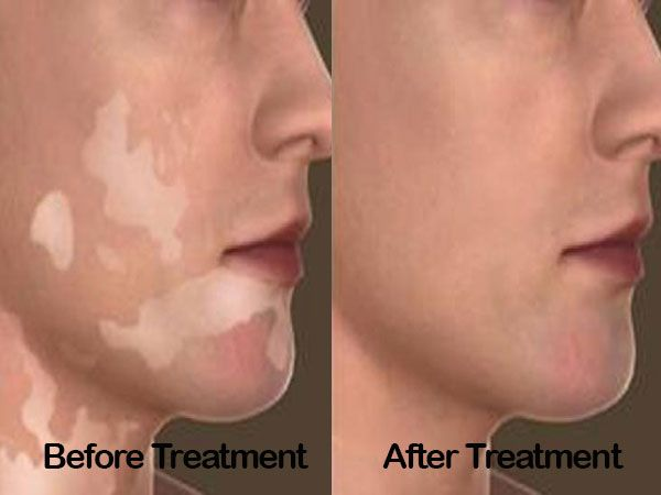 Best Vitiligo #Surger treatment in delhi by dr. rajat gupta. he is a best #doctor for skin #treatment with good knowledge. Call me