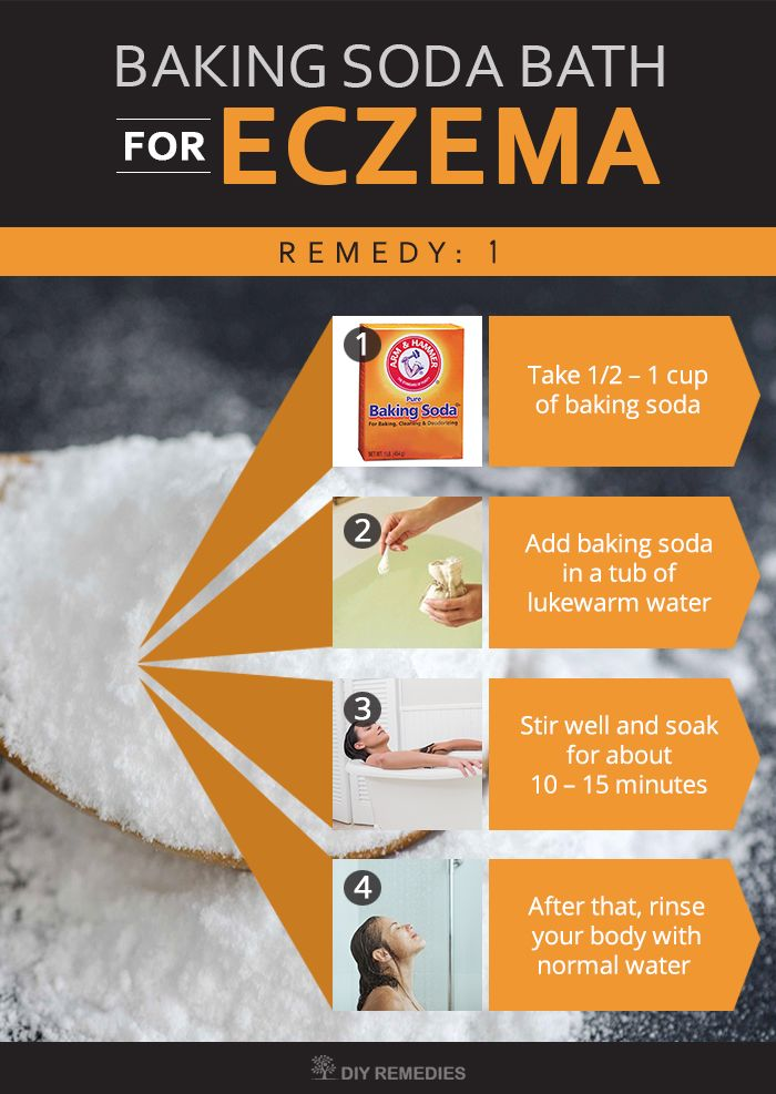 1Tbsp baking soda in the bath for eczema. Eczematic skin is acidic, baking soda makes it closer to a neutral pH and sloughs off dead, flaking skin.