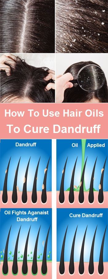 Everyone wants to have healthy scalp, shiny and voluminous hair. Dandruff is a most embarrassing and a nightmare …