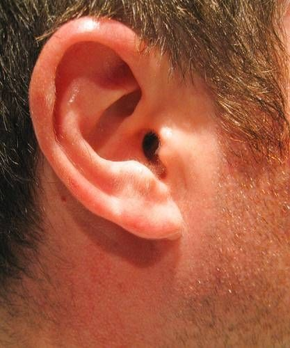 How to Clean Ear Wax with Peroxide