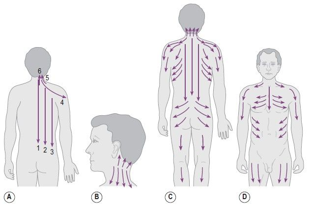 Fig 5.21 (A–D) Treatment areas and direction of Gua Sha lines