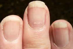 Discover health problems through your nails  This is very true--my doctors frequently look at my nails!
