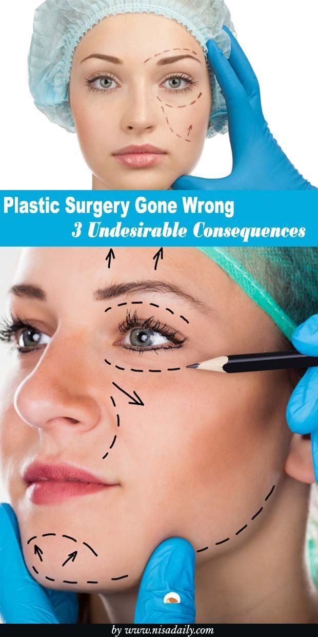 Plastic Surgery Gone Wrong – 3 Undesirable Consequences Plastic Surgery Gone Wrong, Plastic Surgery Gone Wrong before and after, Plastic Surgery Gone fail.