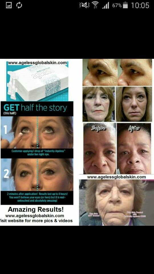 Say goodbye to your under eye bags, dark circles and puffiness to find out more about this just send me a message