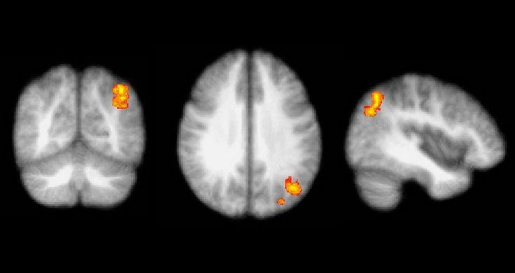 Estímulo cerebral antes dos três anos é crucial para o desenvolvimento da aprendizagem. Pesquisas têm comprovado que esse é o momento-chave do desenvolvimento do ser humano na formação das capacidades cognitivas, motoras e emocionais que vão se refletir na sua personalidade ao longo de toda a vida