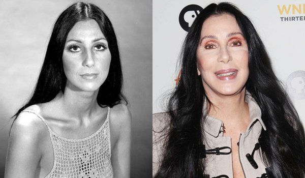 Yaaaaaa - shit shame, NO COMMENT!!!!!!!!!! cher plastic surgery