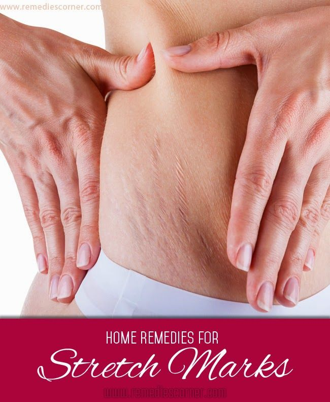 Home remedies for stretch marks   Remedies Corner