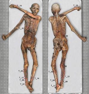 A diagram of Ötzi showing the locations of his tattoos. The researchers are the first to identify tattoo 15, on the mummy's right ribcage.  Otzi tattoo diagram
