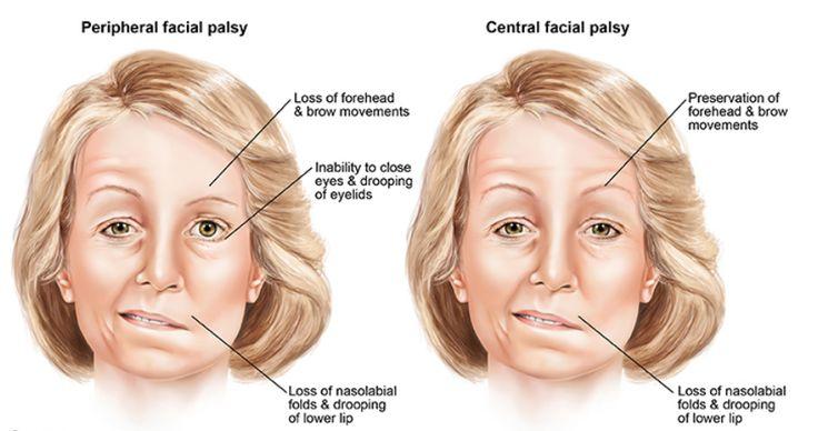 Facial paresis after stroke