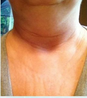 Remedio casero par el cuello arrugado