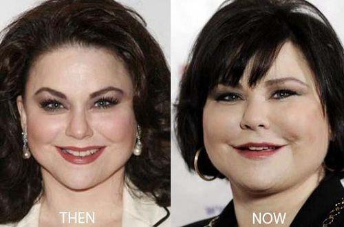 Delta Burke Plastic Surgery Bad Dreams Plastic Surgery