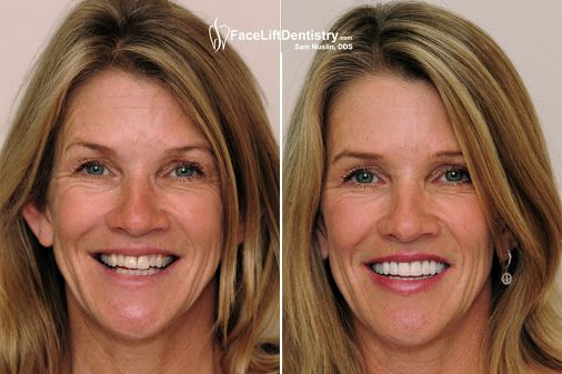 https://www.facebook.com/faceliftdentistry  Prepless Porcelain Veneers can drastically change the way you look, and most likely will change the way you feel about yourself.   But don't worry contact award winning 2016 Best LA's cosmetic Dentist Dr. Sam Muslin now.  They offer a natural, long-lasting, finish to give you a natural looking, beautiful, smile for years. For more details Visit his website now.