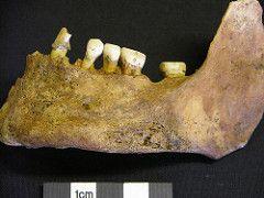 Phossy Jaw