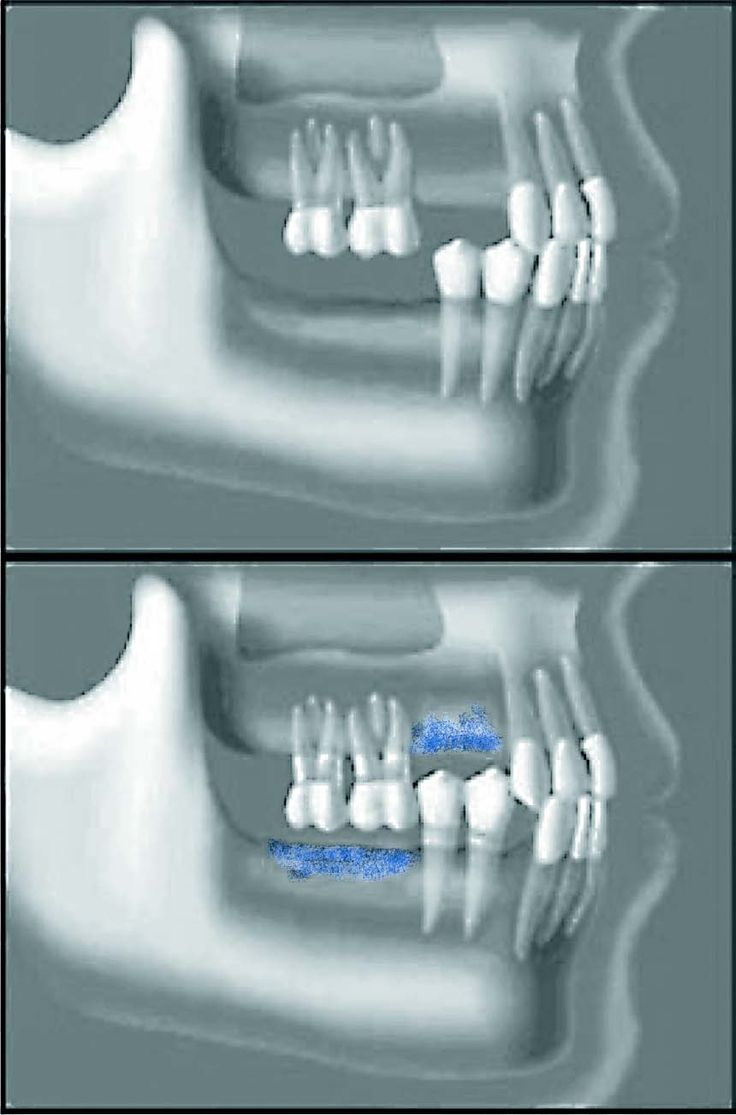A dental implant is essentially a substitute for a natural root and commonly it is screw or cylinder shaped. Each implant is placed into a socket carefull.